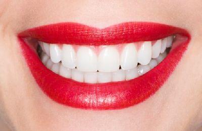 rotting teeth photo