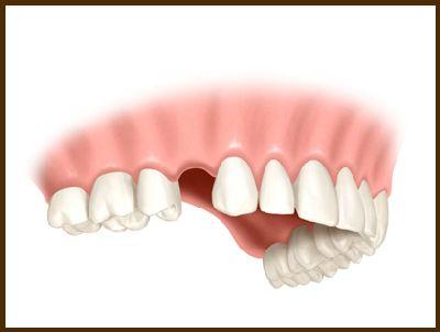 Scheme teeth