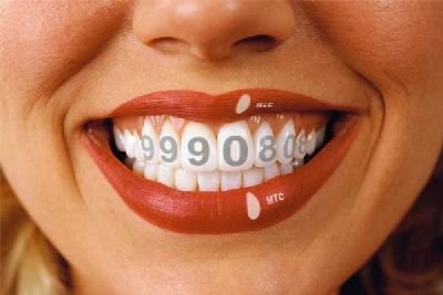 Teeth in installments